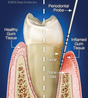 PeriodontalThereapy01