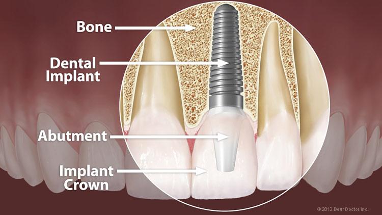 dental-implant-anatomy-large