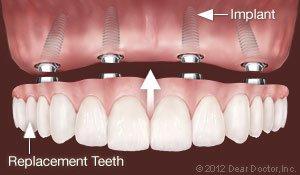 implants-3